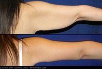 How to Get Rid Of Arm Fat